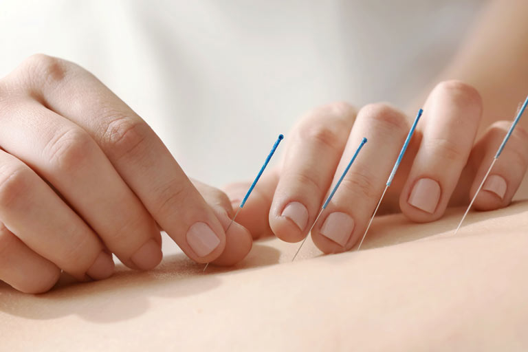 THERAPIES . acupuncture-fw